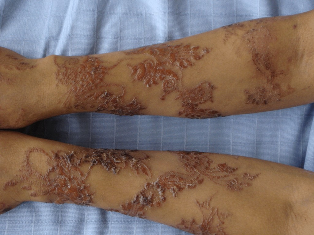 Images of Infected Tattoos